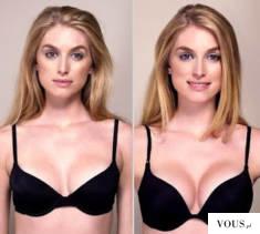 Powiększenie biustu bez operacji – najskuteczniejsze tabletki na powiekszenie biustu